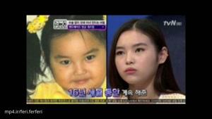 اقدام بی رحمانه یک مادر برای زیبا شدن صورت دخترش