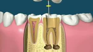پر کردن و قالب گذاری دندان