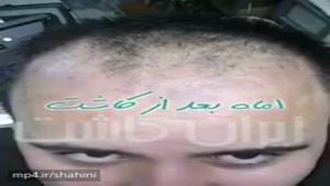 نتیجه کاشت موی طبیعی کاشت شده در مرکز ایران کاشت