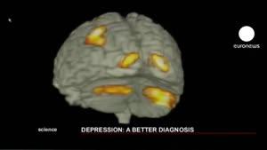 مغز بیماران مبتلا به افسردگی کوچک می شود
