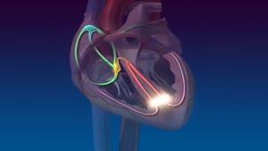 سیستم راهنما قلب