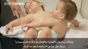 دوقلوهای به هم چسبیده پس از عمل جراحی جدا شدند و زنده ماندند