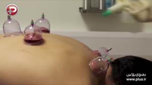 سوزن هایی که بدون رد پا خون بدنتان را می مکند؛ روش جدید حجامت با استفاده از طب سوزنی