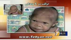 زن ۳۰ ساله نوزادنما