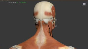 سردرد - علل مکانیکی و تغذیه سردرد