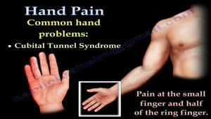 همه چیز درباره درد انگشتان و دست