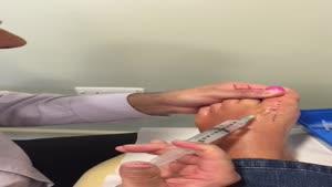 آموزش تزریق به آرتروز شست پا