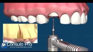 شیوه غیر تهاجمی extract دندان ها جهت ایمپلنت