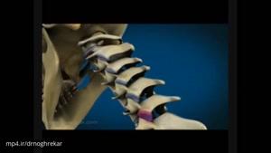 علل درد گردن - دکتر علی نقره کار