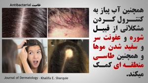 درمان باور نکردنی ریزش مو با پیاز