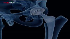 چطور برای یه جراحی تعویض مفصل ران آماده بشم