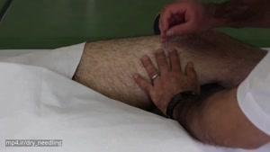 درمان زانو درد با درای نیدلینگ توسط فیزیوتراپیست صادق زراعتکار