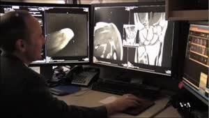 MRI سه بعدی