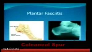 خار پا شنه چیست؟ وچطور درمان میشود.؟