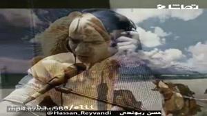 حسن ریوندی - معجزه ای به نام پروتز