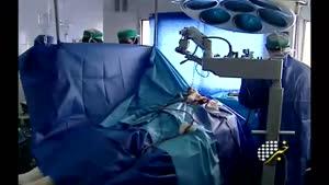 عمل جراحی مغز بدون بیهوشی