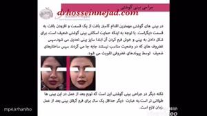 جراحی بینی گوشتی دکتر حسین نژاد