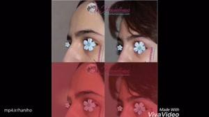 رینوپلاستی قبل و بعد جراحی بینی