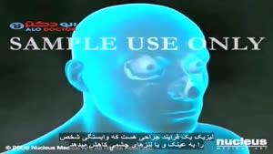 عمل لیزر چشم -لیزیک