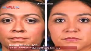 روایت جراحی بینی