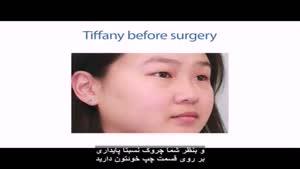 جراحی پلک دو کره ای
