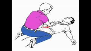 آموزش احیا -بازکردن راه هوایی وتنفس مصنوعی