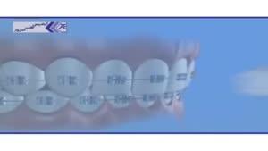 بهداشت دهان و دندان در بیماران ارتودنسی