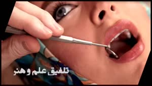 تغییر رنگ دندان ها و راه های درمان آن