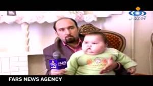 چاق ترین نوزاد ایرانی با وزن ۲۰ کیلوگرم در ۷ ماهگی