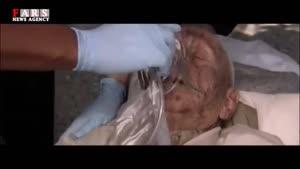 هر ۱۲ دقیقه یک نفر آلزایمر میگیرد/ چتر فراموشی بر سر ایرانیان!