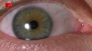 حرکت مردمک چشم ۱۰۰۰ فریم در ثانیه