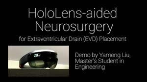 انجام جراحیهای دشوار مغزی با هدست هولولنز/ فیلم