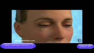 جراحی زیبایی پلک پایین