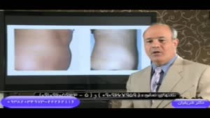 توضیحات کامل دکتر شریفیان در مورد عمل زیبایی لیپولیز یا لیپوساکشن