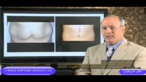 مطالبی در مورد جراحی زیبایی شکم یا ابدومینوپلاستی توسط دکتر شریفیان