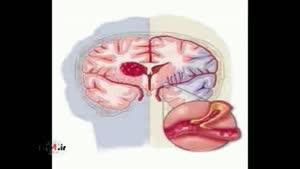 تشخیص ضربه مغزی با چند سوال ساده