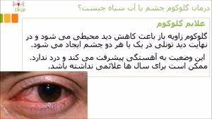 درمان گلوکوم چشم یا آب سیاه چیست؟
