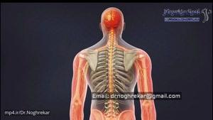 دستگاه محرک طناب نخاعی (SCS) برای دردهای لاعلاج