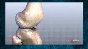 درمان زانو درد