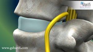 انیمیشن جراحی دیسک کمر