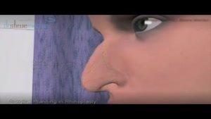 انیمیشن جراحی بینی