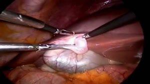 جراحی کیسه صفراوی