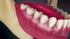 انیمیشن دندانپزشکی