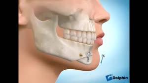 انیمیشن جراحی کوتاه کردن چانه بلند