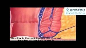 کلینیک تخصصی درمان بواسیر شقاق فیستول و کیست مویی با لیزر