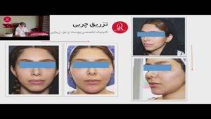 تزریق چربی | فیلم تزریق چربی | کلینیک پوست و مو رز | شماره ۲