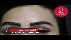 نظرات کاشت ابرو | فیلم کاشت ابرو | کلینیک پوست و مو رز | شماره ۱۴