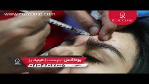 تزریق بوتاکس | فیلم تزریق بوتاکس | کلینیک پوست و مو رز | ۴