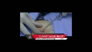تزریق چربی | فیلم تزریق چربی | کلینیک پوست و مو رز | شماره ۶