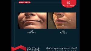 تزریق ژل | تزریق ژل لب | فیلم تزریق ژل لب | کلینیک پوست و مو رز | شماره ۱